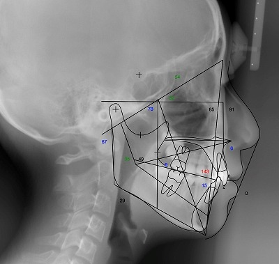 a-Lateral X-ray with Tracing.jpg